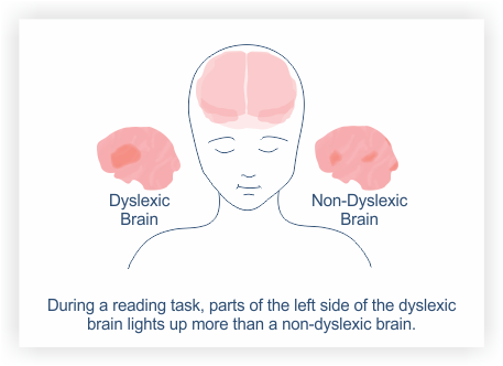 the dyslexic brain during a reading task